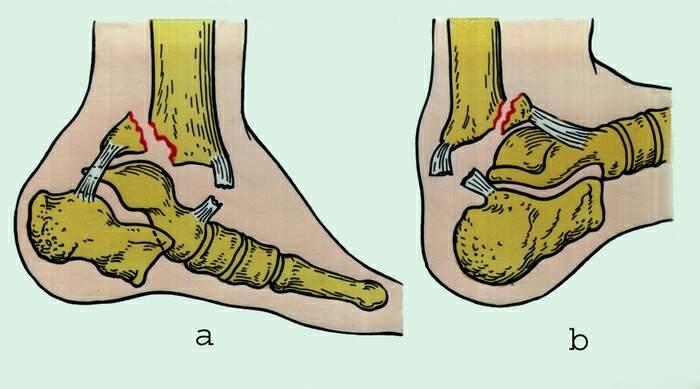 смещение после операции голеностопного сустава