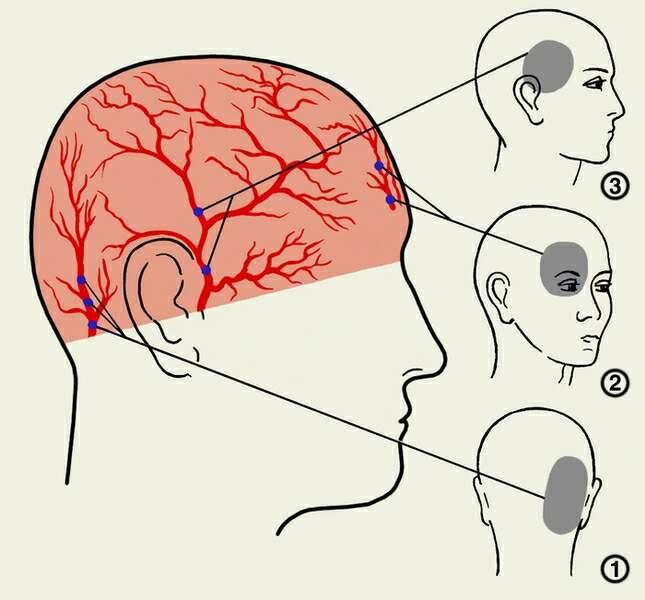 Почему болит голова в затылочной области