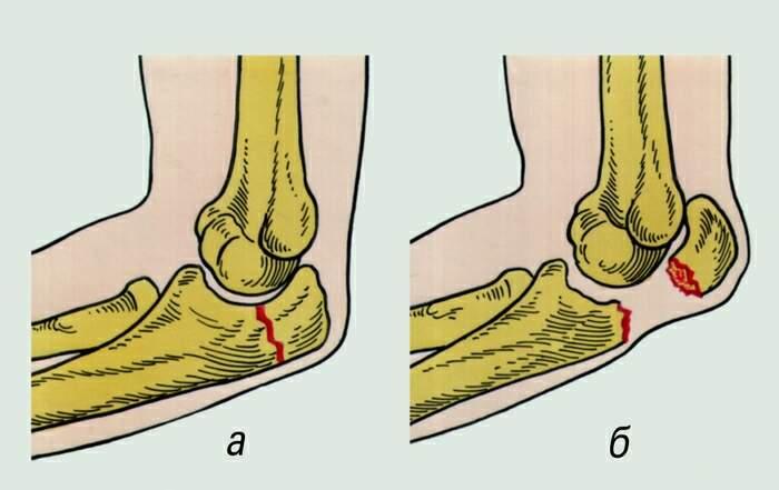 смещение коленного сустава после перелома