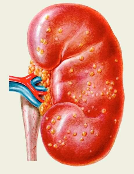 хроническое воспаление почек нифрит лечения с спортом Гарфилд