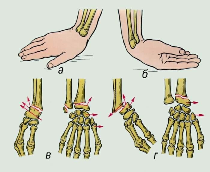 какие упражнения при переломе предплечья лучевой кости отличие