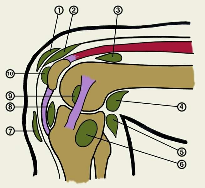 синдром инфрапателлярной складки коленного сустава