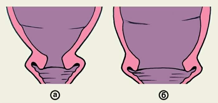 Что колят беременным для раскрытия