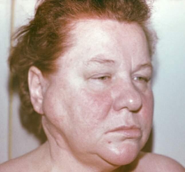 Лимфосаркома